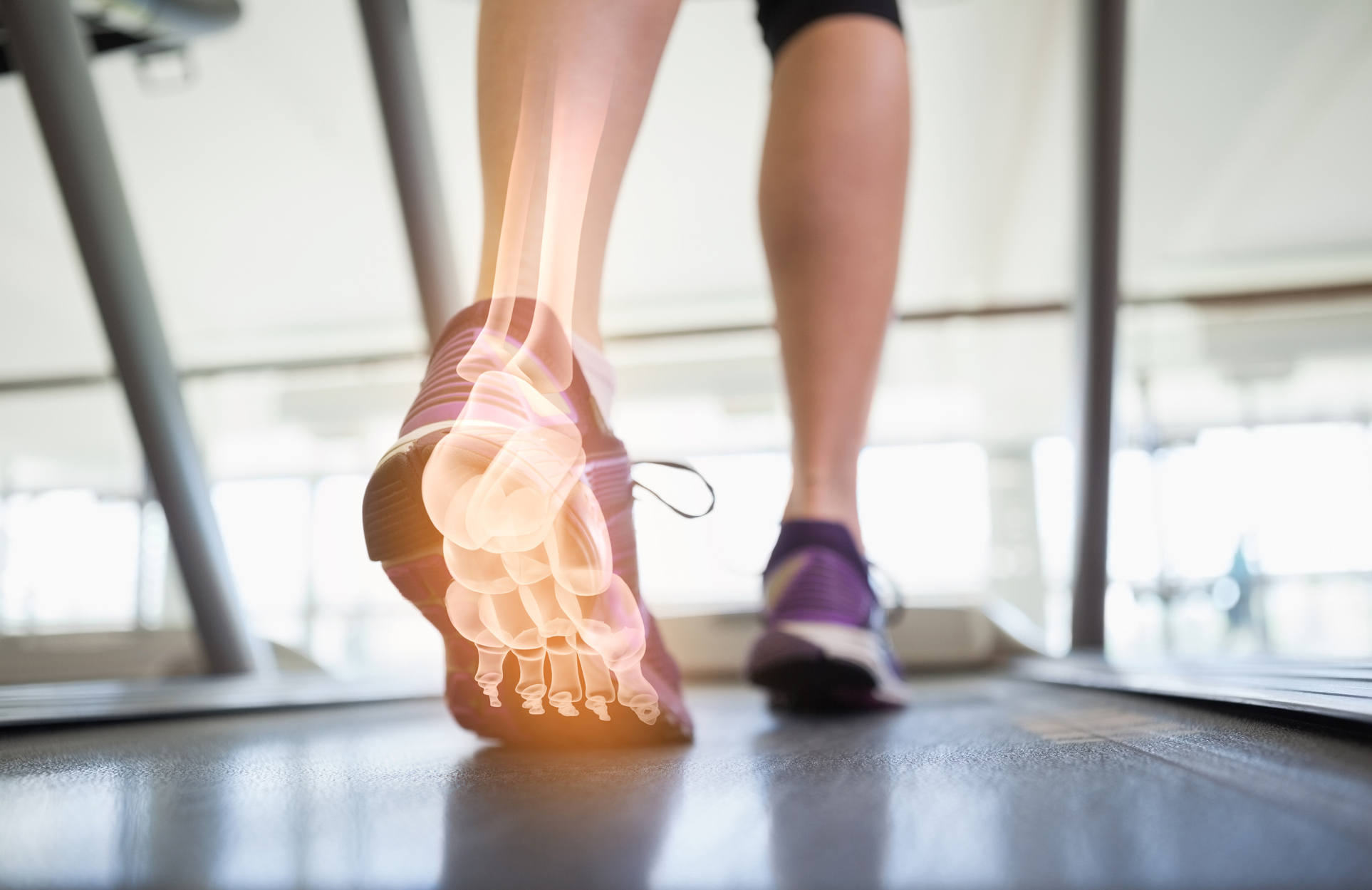 Jogging feet with x-ray view of foot bones